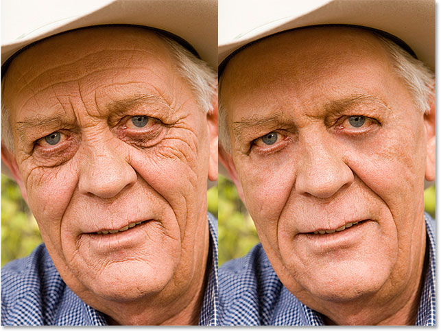 wrinkles-removed-before-after